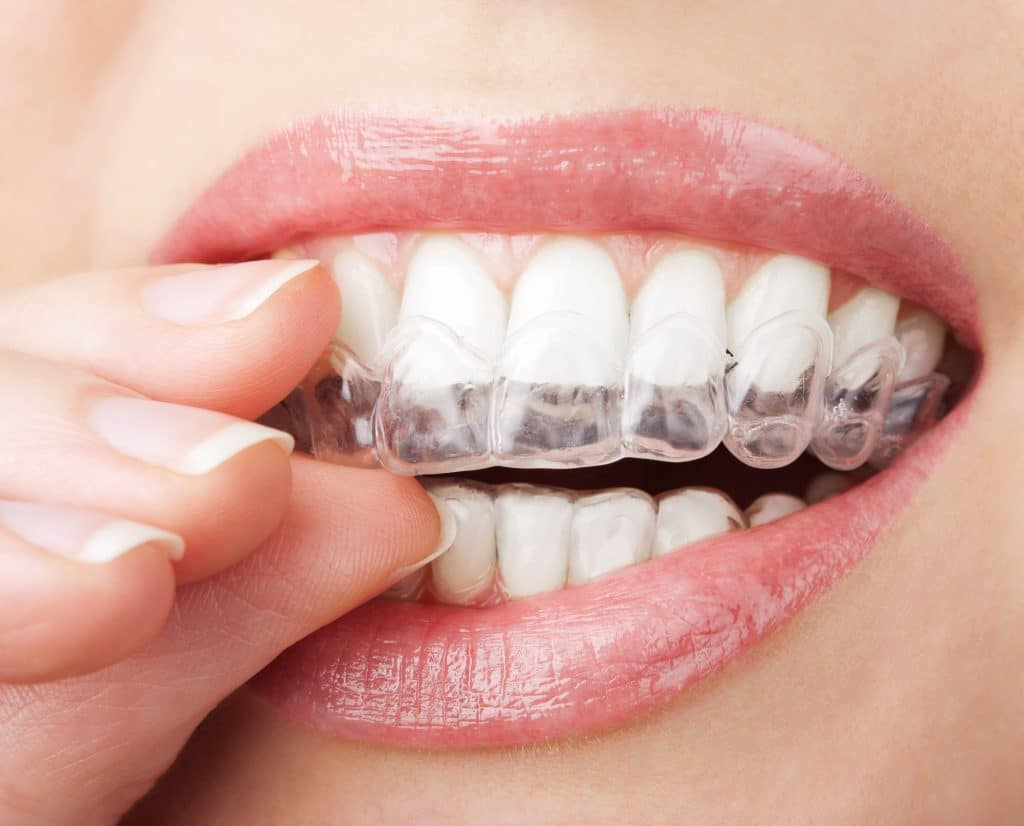 woman putting in her clear correct orthodontics