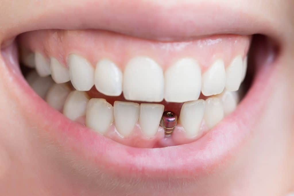teeth with dental implant