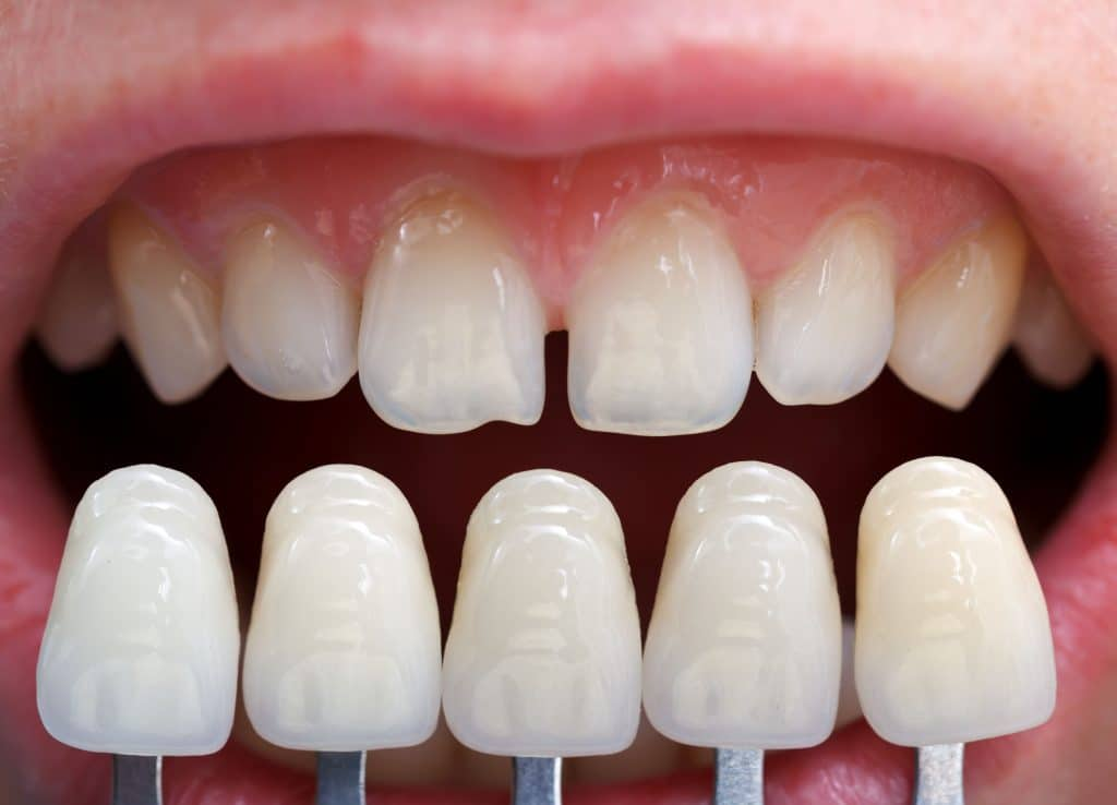veneers next to teeth