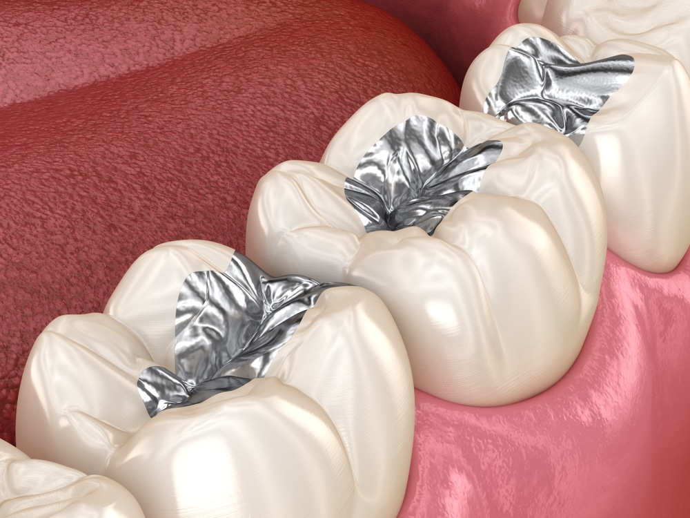 You may have heard that metal fillings come with risks; get the facts you should know.