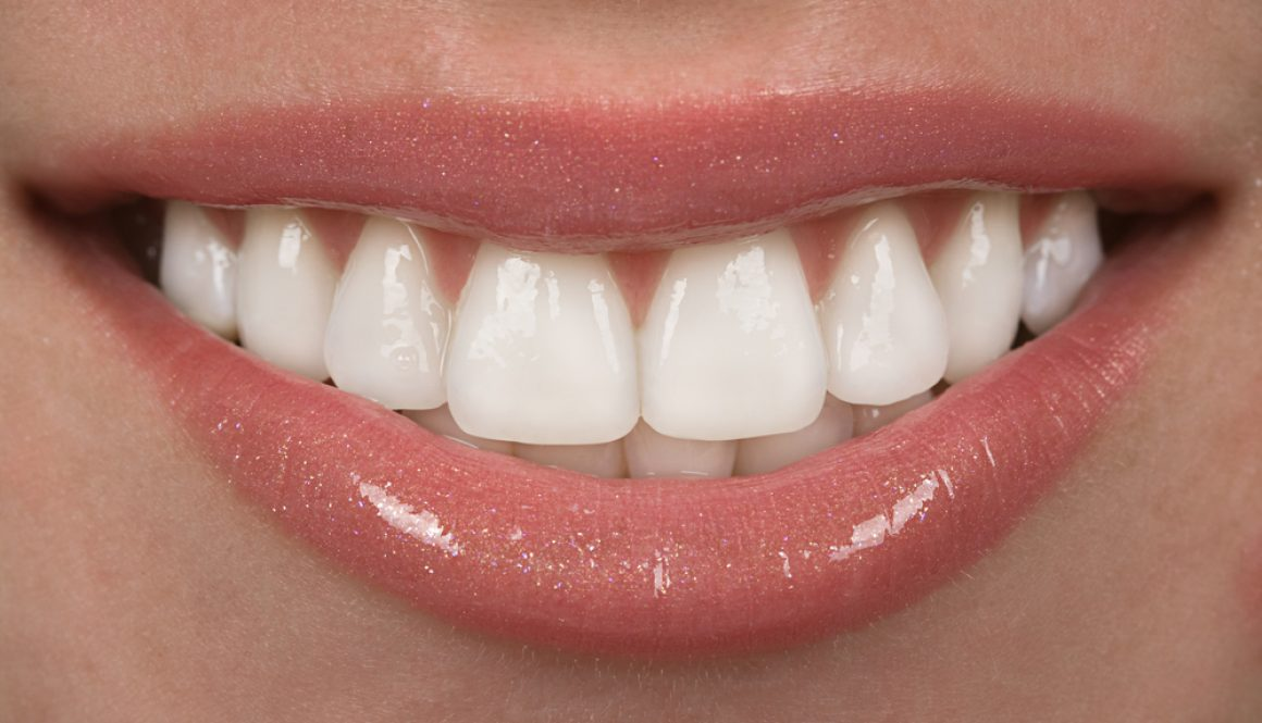 Smiles are one of the first things people notice; smile makeovers help create a great impression.