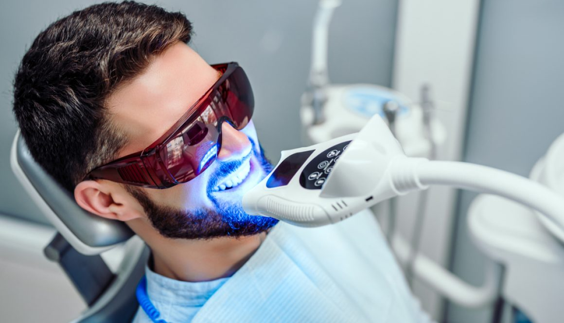 Four things to consider if you're trying to decide between at-home or dental clinic whitening.