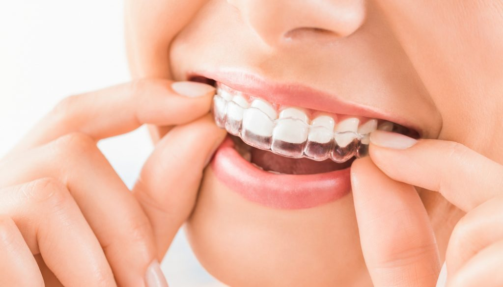 ClearCorrect orthodontic aligners are a great alternative to metal braces for some people.