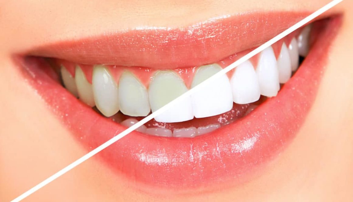 what-causes-tooth-discoloration