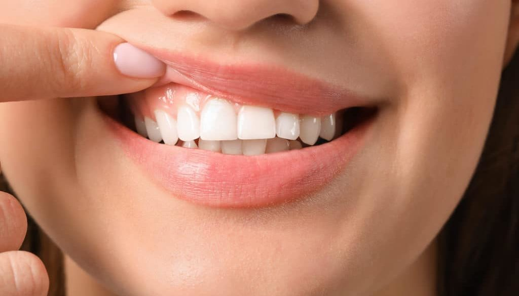 is-gum-disease-affecting-your-smile