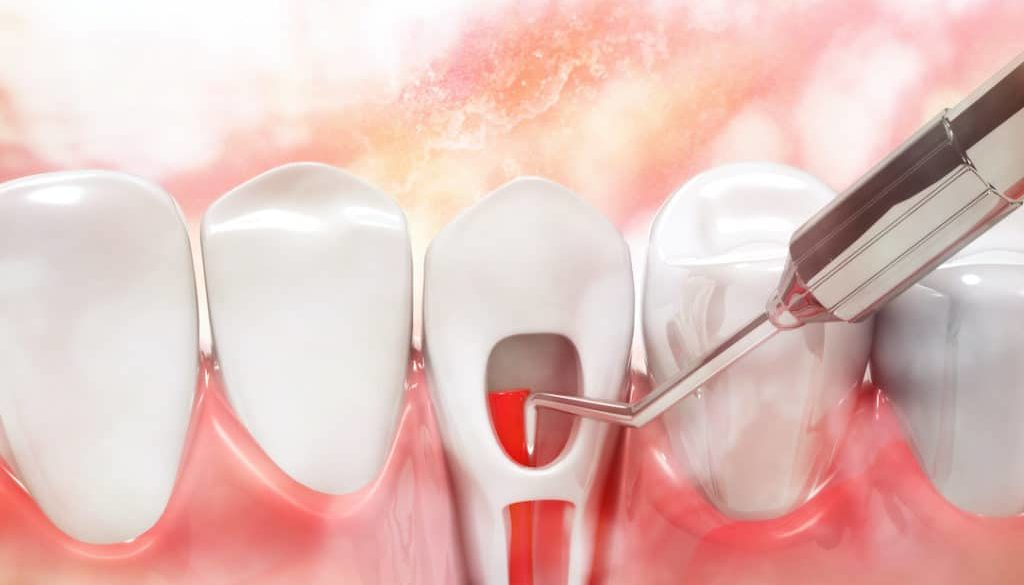 the-signs-you-may-need-root-canal-therapy