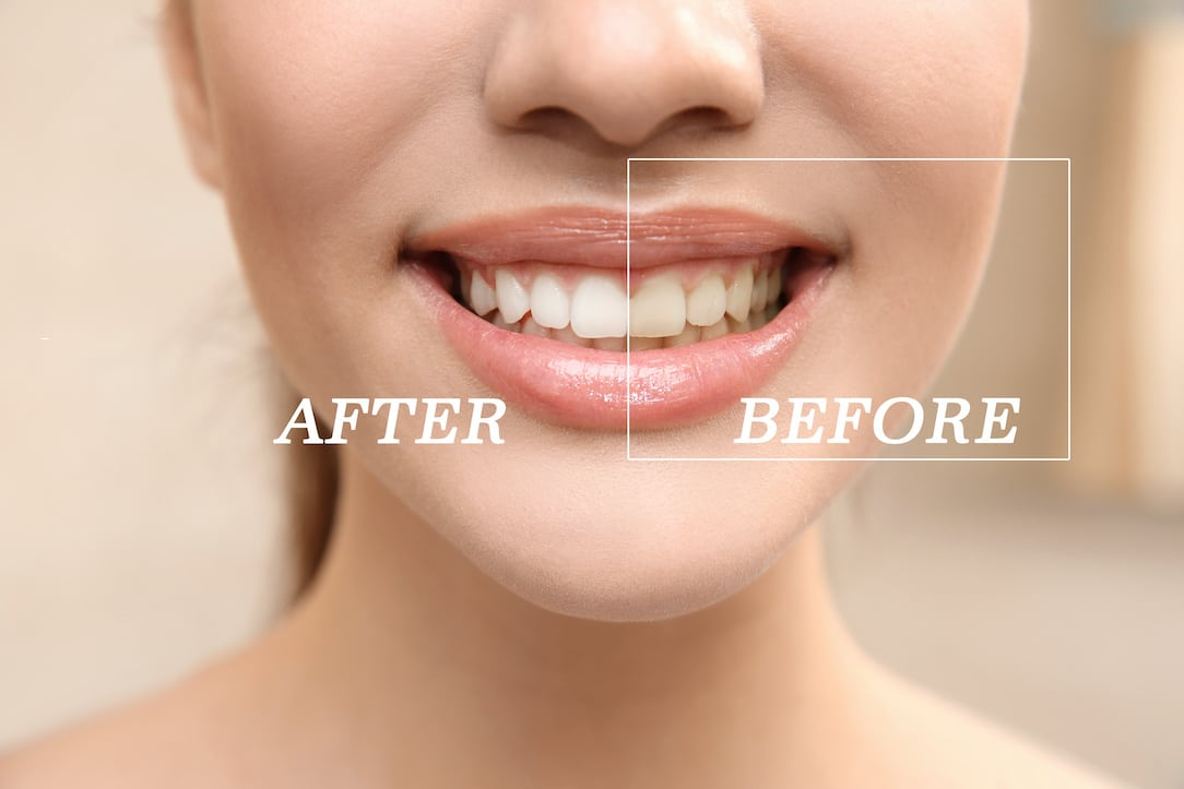 teeth-whitening-stain-types-and-treatment-options